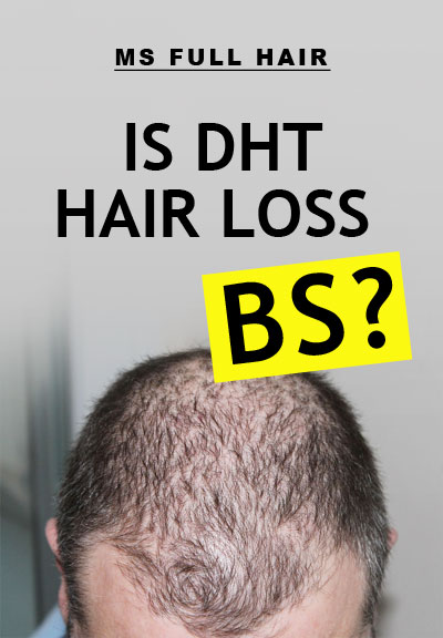 dht hair loss baldness cure myth