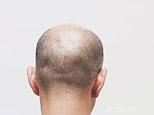 Is DHT Hair Loss Actually BS? Myth Debunked!
