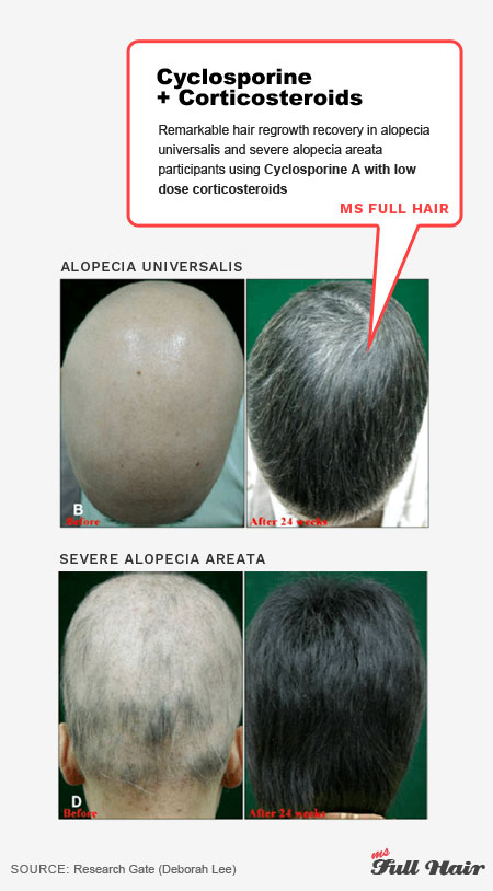 AA cyclosporine for alopecia areata treatment with corticosteroids