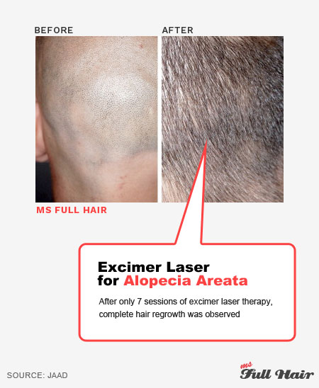 aa excimer laser light therapy for alopecia areata treatment