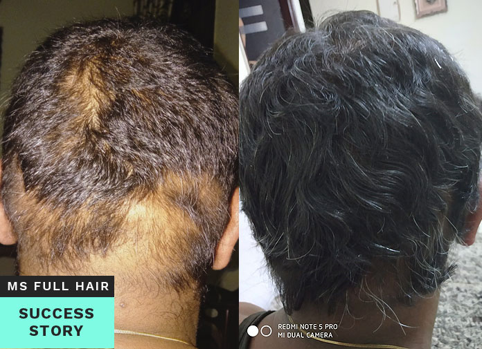 alopecia areata hair regrowth success story