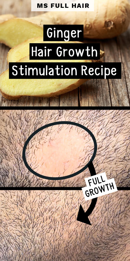 ginger hair growth stimulation recipe for alopecia areata hair loss