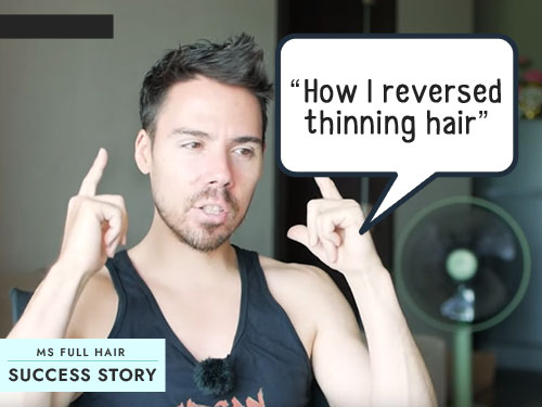 Success Story - How I Reversed Hair Thinning on Top of Head