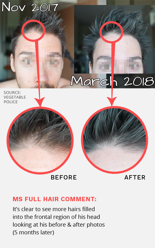 hair thinning treatment before after photos
