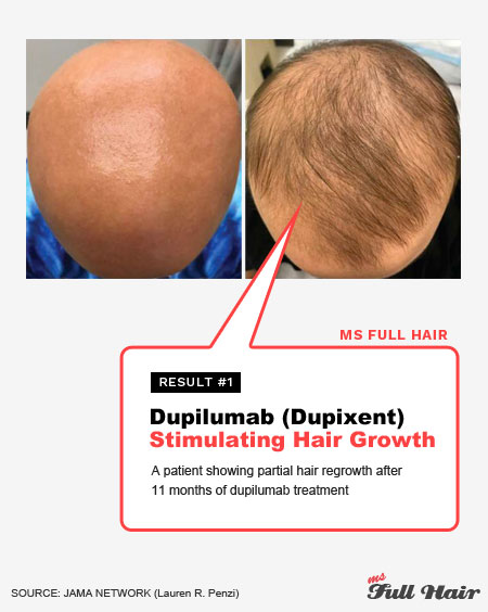 dupilumab dupixent for alopecia areata treatment