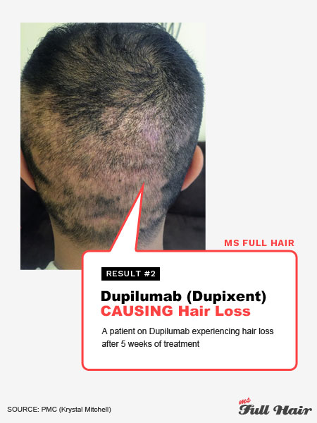 What S The Best Alopecia Areata Treatment We Analyzed 297