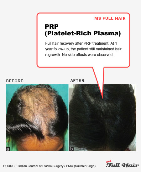 platelet rich plasma prp for hair loss alopecia areata