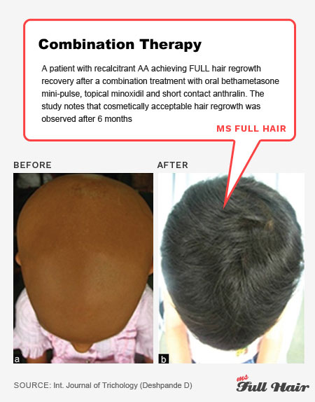 pulse corticosteroid minoxidil anthralin alopecia universalis treatment hair regrowth