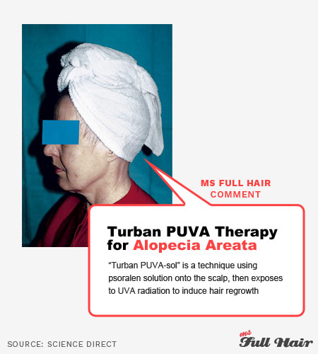 puva turbansol topical psoralen therapy for alopecia areata treatment