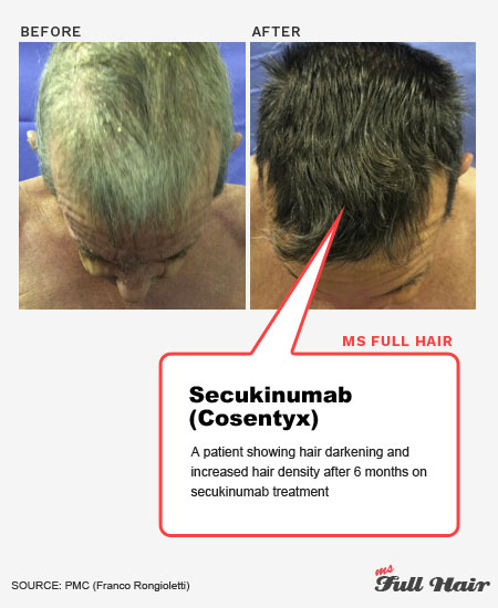secukinumab cosentyx for alopecia areata