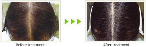 cayenne pepper soy for hair loss before after pictures