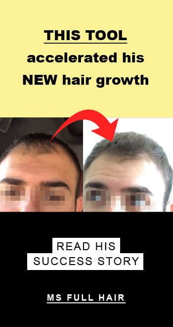 derma roller for hair growth before after photos