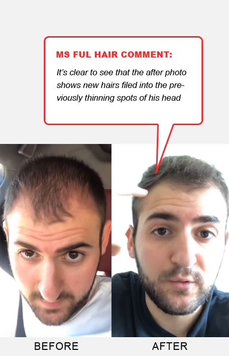hair loss success story reverse male pattern hair loss before after photos