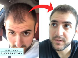 How He Reversed Male Pattern Hair Loss (Step-by-Step)