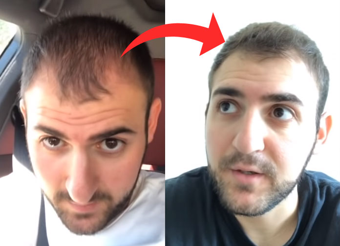 hair loss success story reverse male pattern hair loss