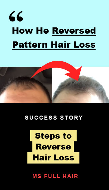 how to reverse male pattern hair loss
