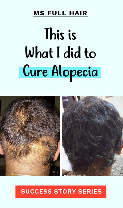 alopecia areata hair regrowth success story multiple bold patches