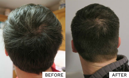 rosemary oil for hair growth before and after results