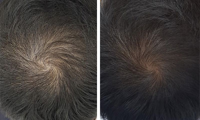 asian herbs for hair loss before and after photos