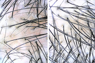 chinese korean herbs for hair loss before and after scalp photos
