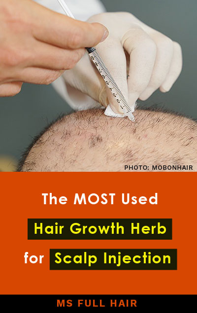 pharmacopuncture for hair loss stimulating hair regrowth